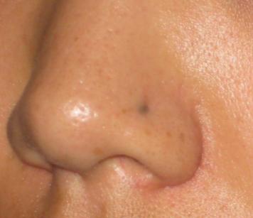 scarring nose piercing