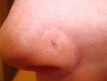 nose piercing scar