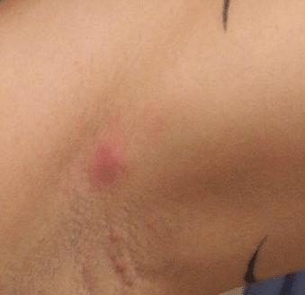 bump under armpit