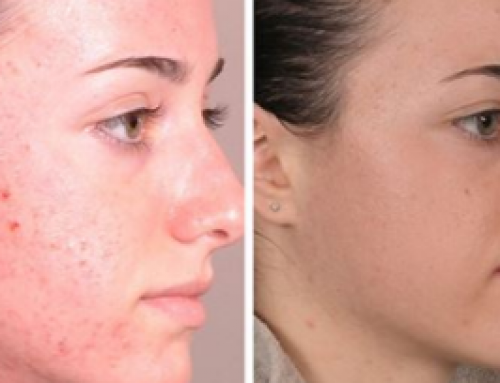 Best Chemical Peel for Acne Scars, Before and After, at Homemade, Large Pores, Dark Skin, Cost, How Many