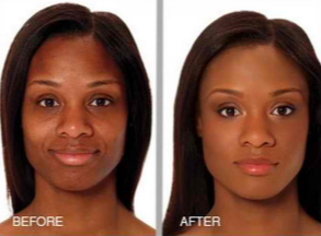 Best chemical peel for acne scars and dark skin