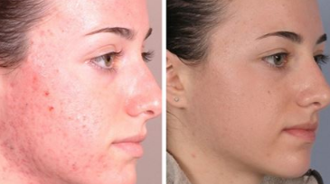 Best chemical peel for acne scars before and after at homemade chemical peel to get rid of acne scars before and after ccuart Choice Image