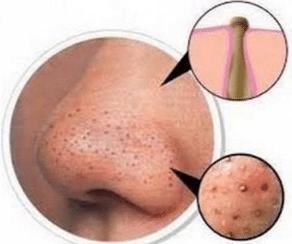 clogged pore on nose causes