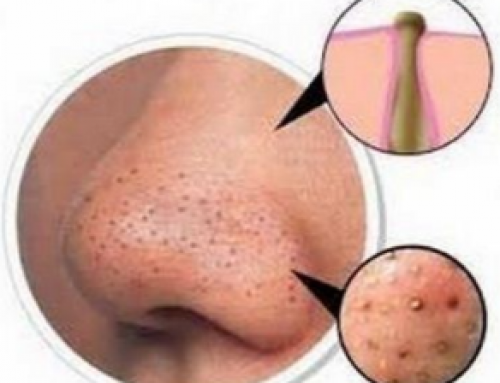 Clogged Pores on Nose, Causes, with White Stuff, How to clean out, Home Remedies