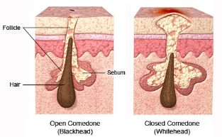 Causes of clogged hair follicle