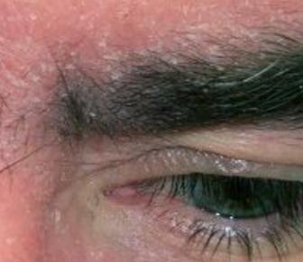 Dandruff in my eyebrows