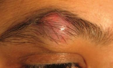 Ingrown eyebrow hair causes