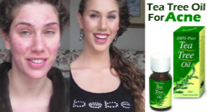 Tea tree oil to get rid of acne scars