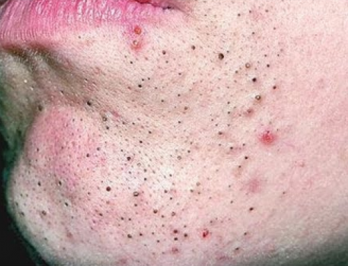 Blackhead on Lip, Line, Popped, Swollen, around Mouth and Chin, turned into Cold Sore, Get Rid