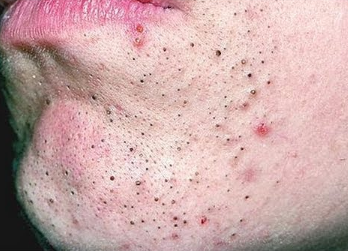 Blackheads on lip causes