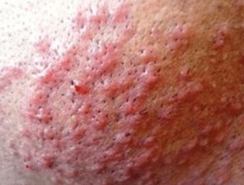 Bumps after shaving causes