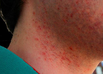 Red bumps after shaving face