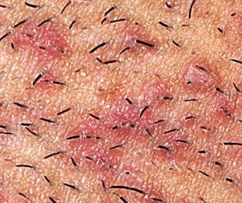 Red bumps after shaving pubes