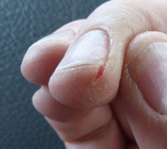 how to stop biting the skin on your fingers