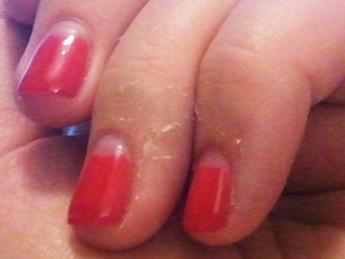 La peau de l&#39;ongle fissuré provoque &quot;width =&quot; 345 &quot;height =&quot; 259 &quot;data-id =&quot; 2312 &quot;/&gt;<p class=