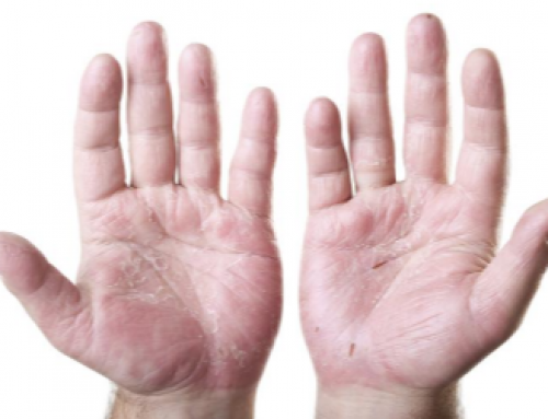 Dry Cracked Hands Causes, Home Remedies, Best Lotion, Cream, Chapped Skin
