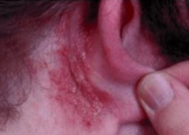 Causes of dry skin behind ears