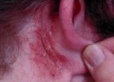 Causes of dry skin behind ears