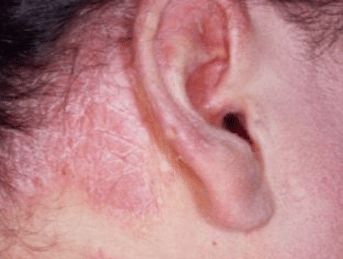 Dry skin behind ears causes