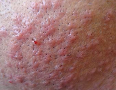 Itch relief from shaved pubes