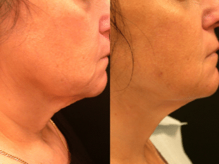 Loose neck skin surgery cost
