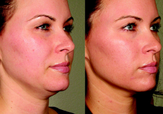 Skin tightening procedure