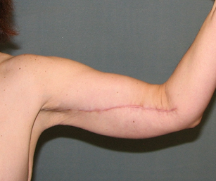 Scars after skin tightening procedure