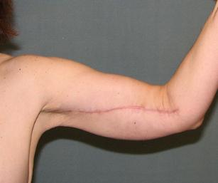 Scars after skin tightening procedure