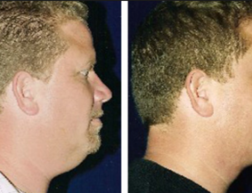 Non Surgical Neck Lift, dr oz, Laser, Before and After, Exercises, Tightening without Surgery