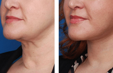 Non surgical neck lifting