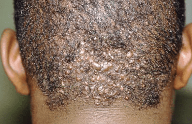 Pimples at the back of head after shaving
