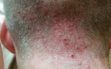 Spots at the back of neck