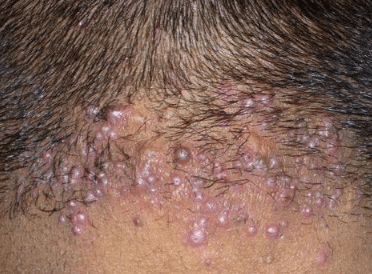 Pimples at the back of head causes