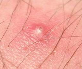 Causes of pimples on pubic area