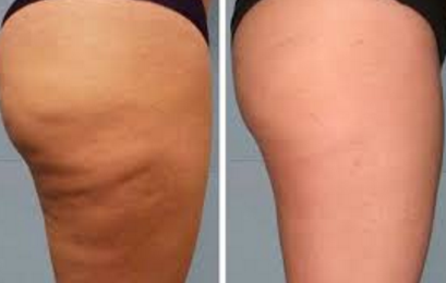 How to remove cellulite on thighs and bum