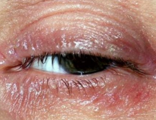 Dry Skin on Eyelid, Red, Burning around Eyes, Irritated, Swelling, Flaky, Home Remedy, Treatment