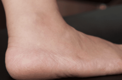 Dry skin on feet causes