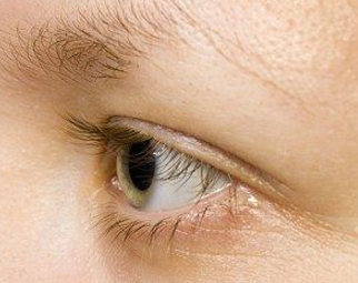 Do Eyebrows Grow Back, after Shaving, Plucking, How to Grow Fast, Long, Thick