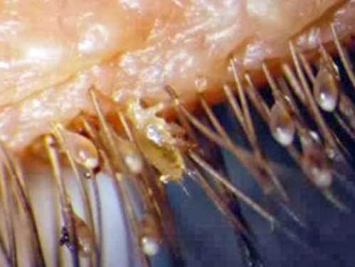 Mites On Eyelashes Www Pixshark Com Images Galleries